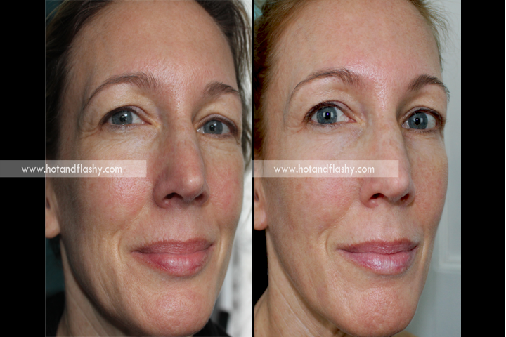 Retin A Update Results On 51 Year Old Skin After 9 Months