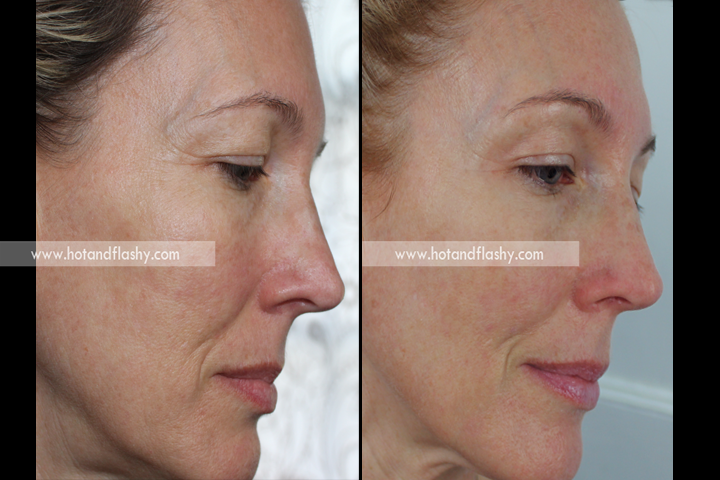 Retin A Update Results On 51 Year Old Skin After 9
