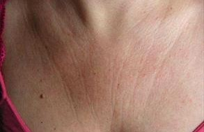 Chest wrinkles from side sleeping