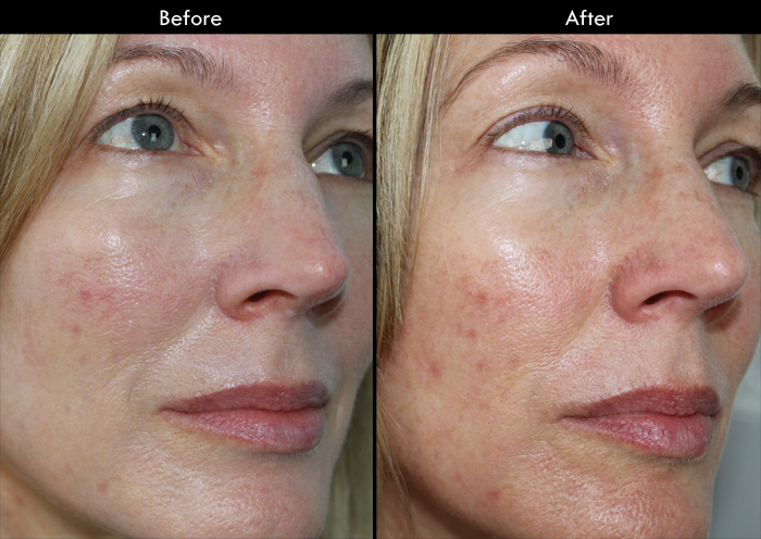 Before & After Using Trioxil.PM Anti-Acne Gel
