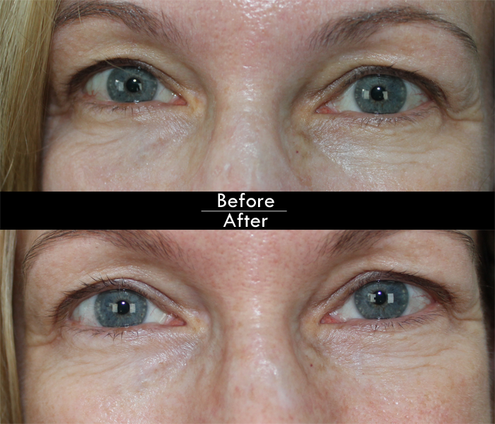 Before & After DS Labs Viterol.A Lotion for Signs of Aging