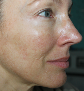Post Acne Left Side