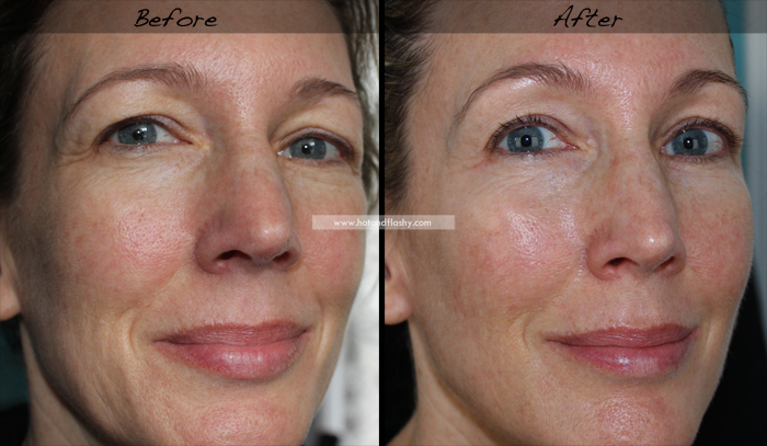 Tretinoin wrinkles before and after : Online and Mail