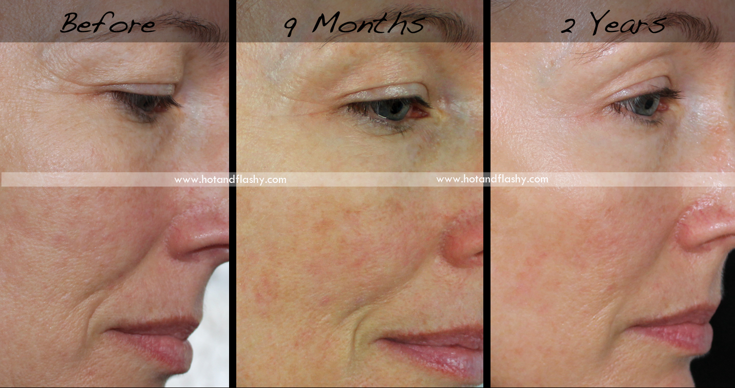 Retin-A for Wrinkles ~ 2 Year Update hotandflashy50.com