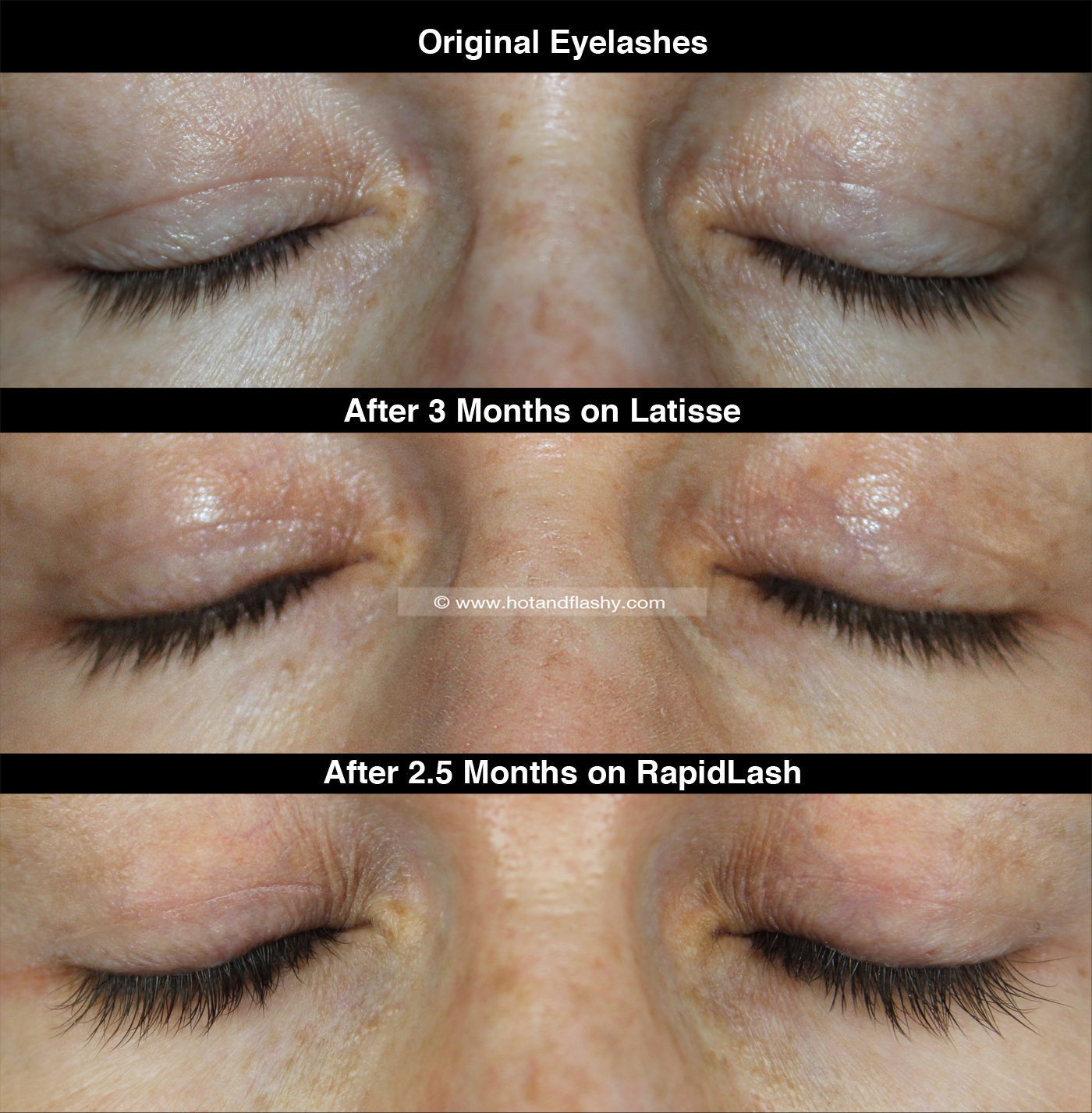 RapidLash Review | Latisse Comparison