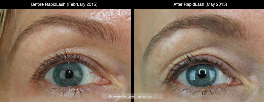 B&A Left Open w Brow 1400