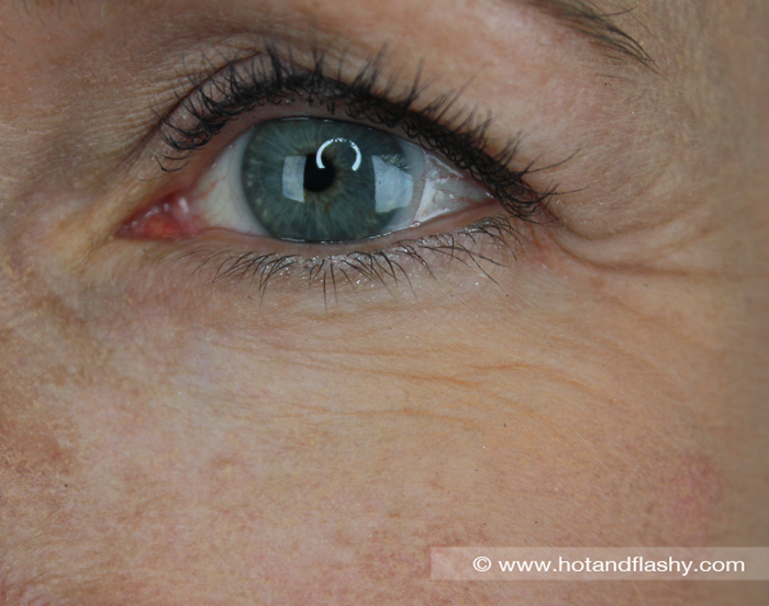 Wrinkles were accentuated and magnified by the drying effect.