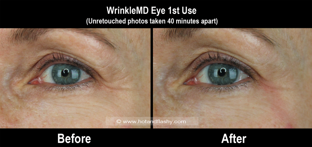 WMD Eye B&A 1st Use 2