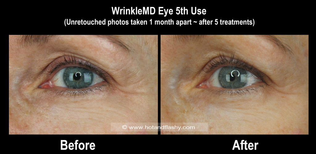 WMD Eye B&A 5th Use 1