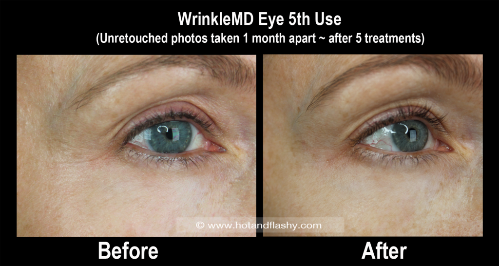 WMD Eye B&A 5th Use 4