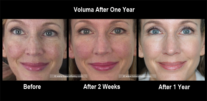 Voluma 1 Year Front Blog