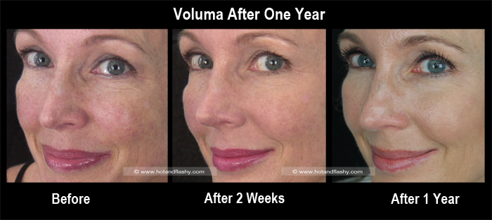 Voluma 1 Year Side 1 3 Views Blog