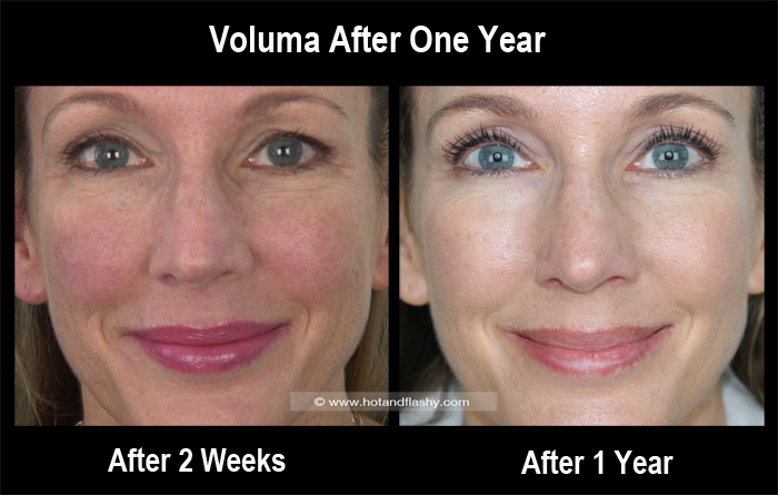 Voluma 2 Weeks to 1 Year Front Blog