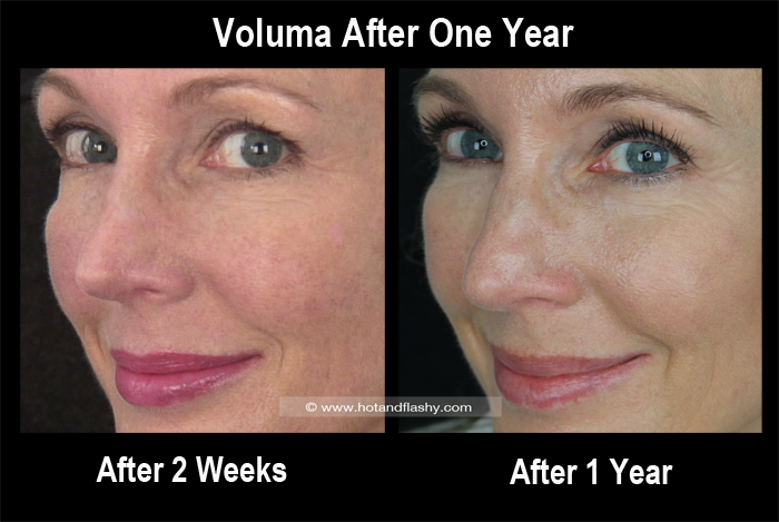 Voluma 2 Weeks to 1 Year Side 1 Blog