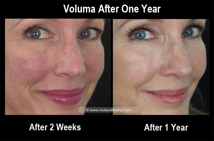 Voluma 2 Weeks to 1 Year Side 2 Blog