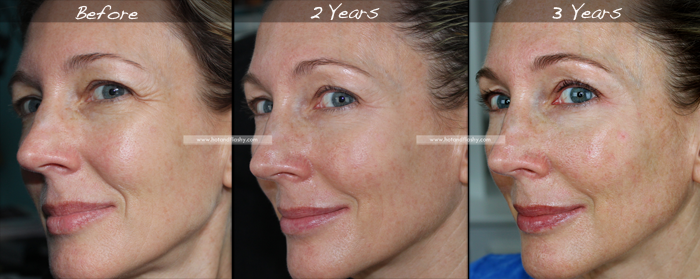 Retin A For Wrinkles 3 Year Results Before Amp After