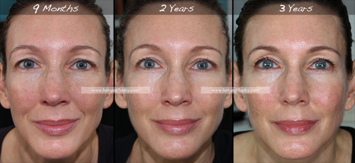 Retin A For Wrinkles 3 Year Results Before After