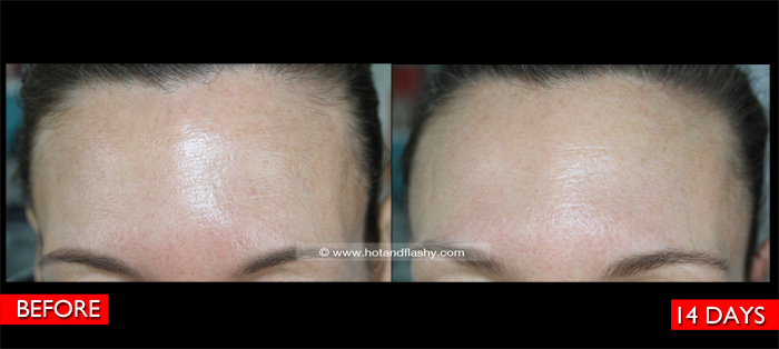 Fraxel Before & After Forehead Detail 2 Weeks