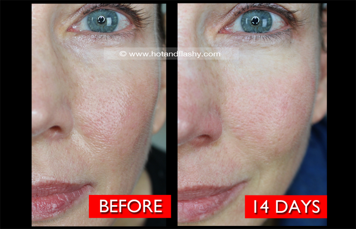 Fraxel Dual Laser | 2-Week Update | Before & After