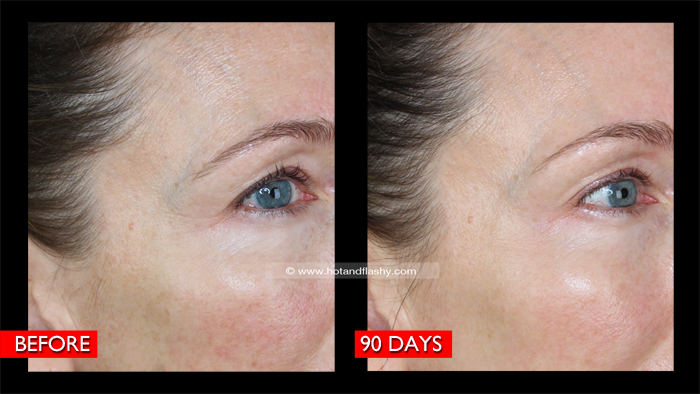 Fraxel B&A 3 Mo Right Detail Blog