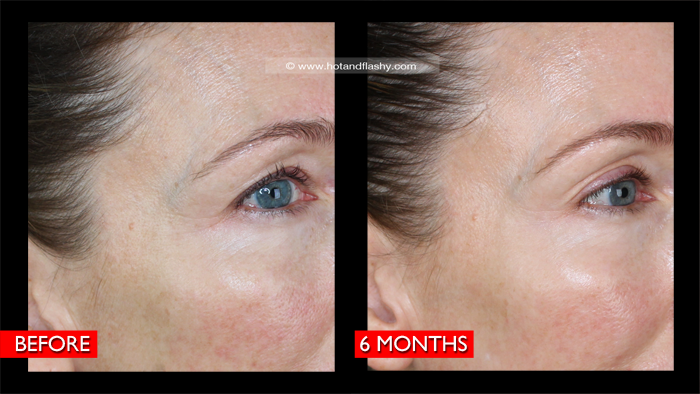 Fraxel B&A 6 Mo Right Detail Blog