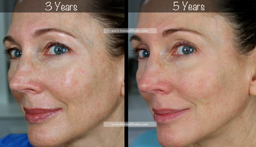 5 Year Retin A Results Before After For Wrinkles Anti Aging