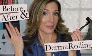 Dermaroller Update April 2018 Thumb